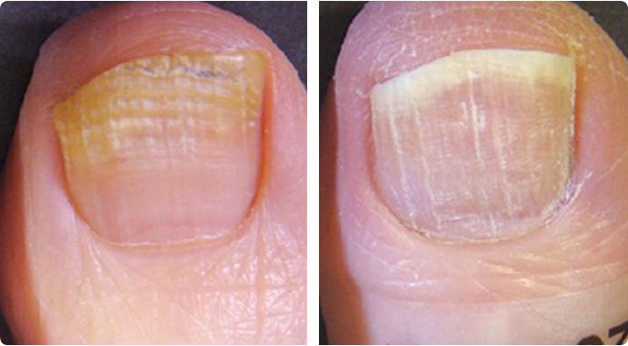 El limón contra el hongo de las uñas en los pies